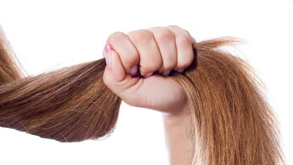 Mãe desesperada raspa o cabelo da filha de dois anos que sofre de tricotilomania