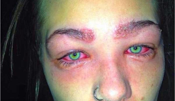 Assista: Jovem de 16 anos quase perdeu a visão por causa de um produto; confira