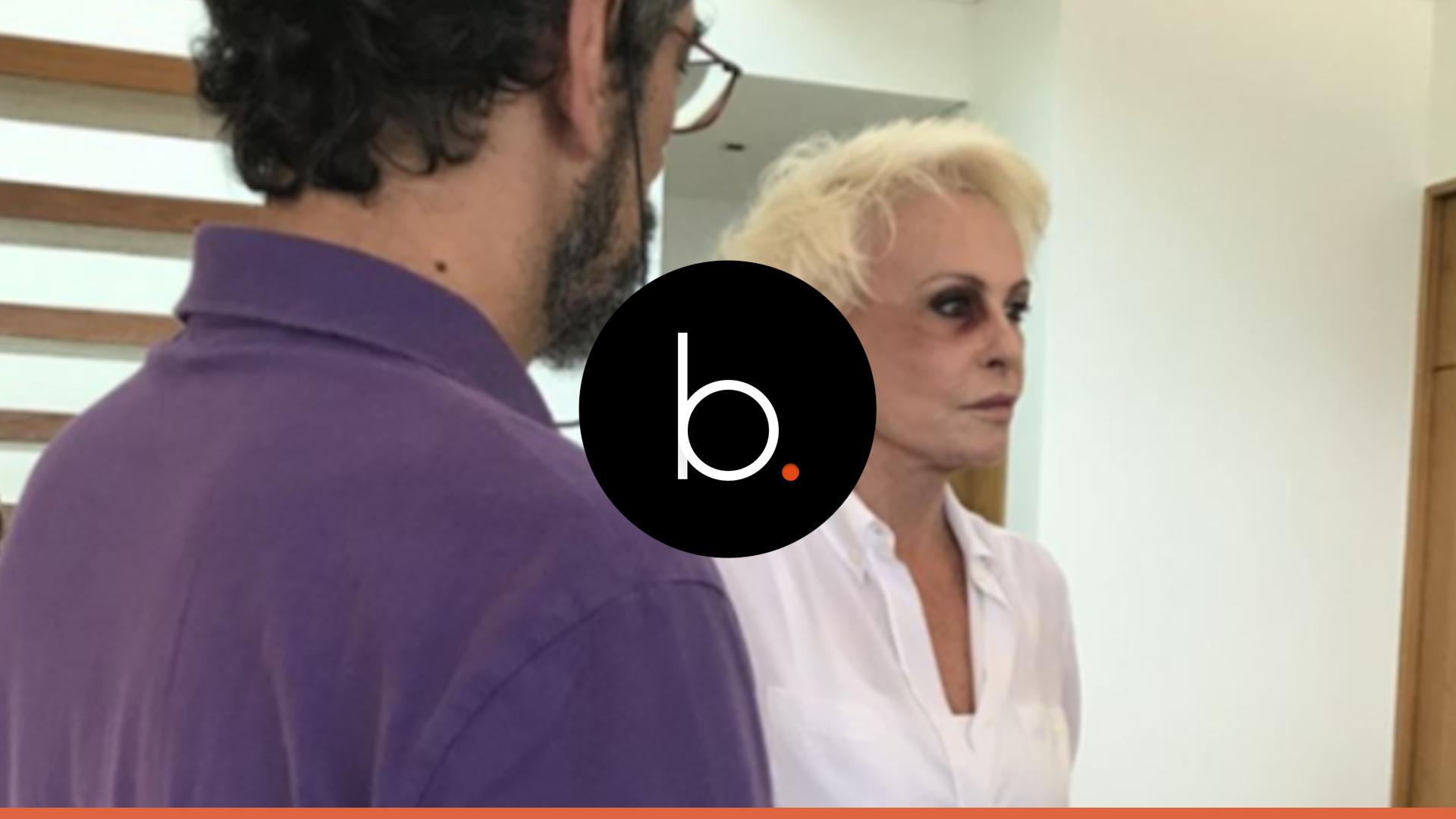 Vídeo emociona: com olho roxo, Ana Braga confessa realidade aterradora: 'Basta'