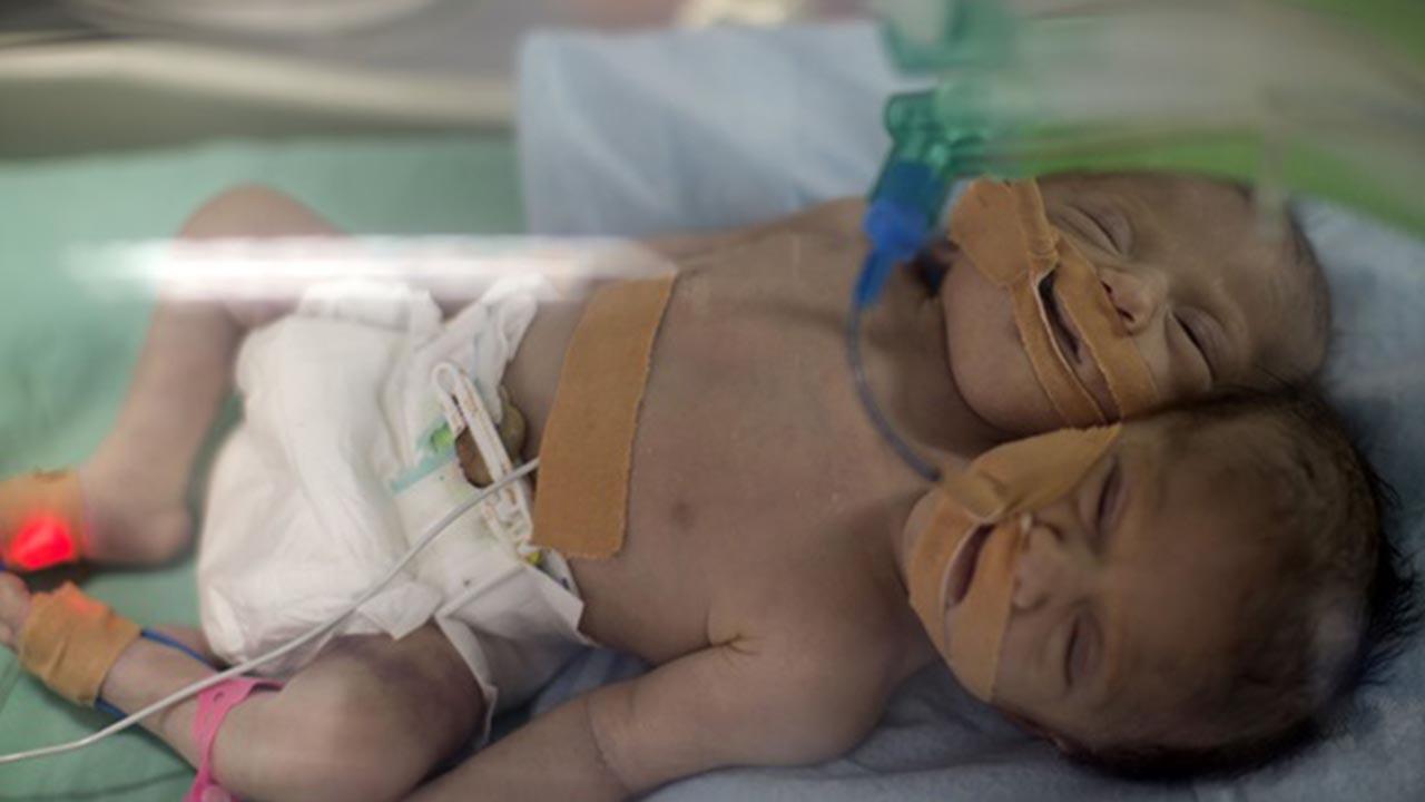 Bergamo, intervento riuscito: separate due gemelline siamesi