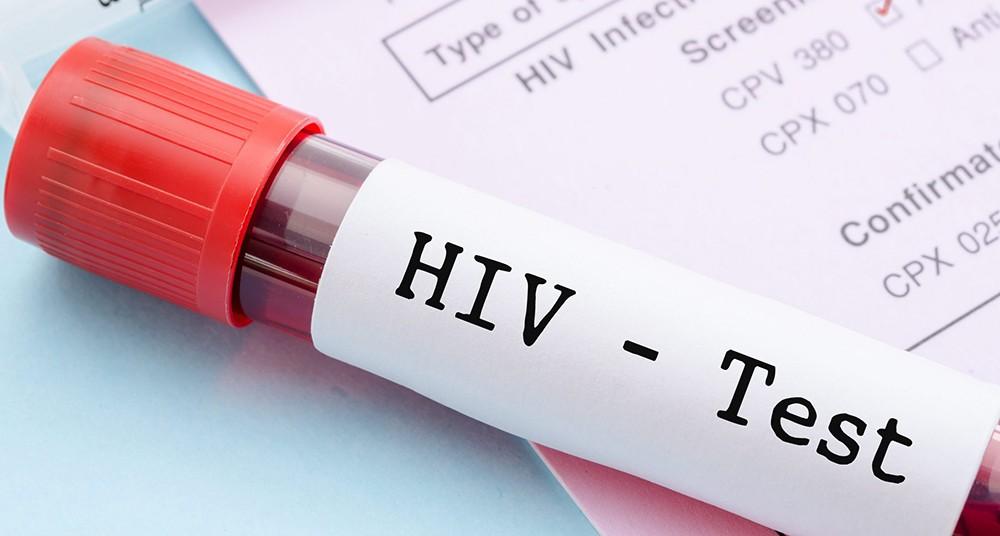 En la conferencia del SIDA surgen nuevas maneras de combatir el VIH