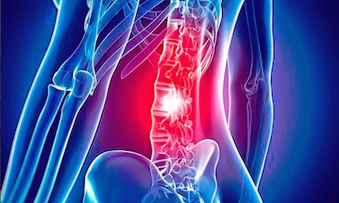 Dolor en la parte inferior de la espalda: causas y tratamiento