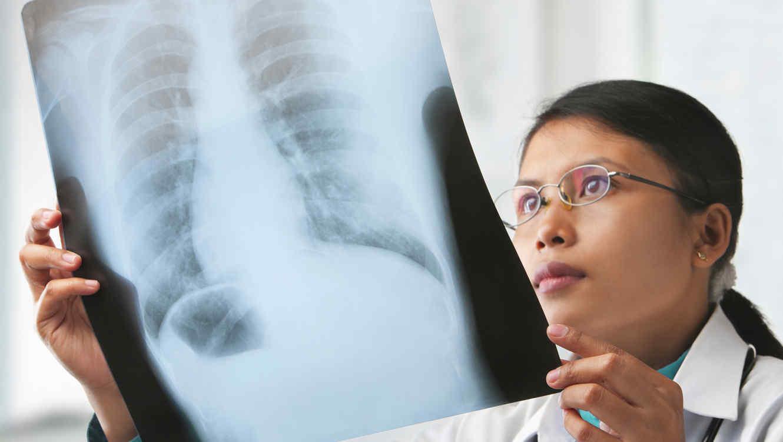 La forma de detener el desarrollo del cáncer de pulmón ha sido descubierta