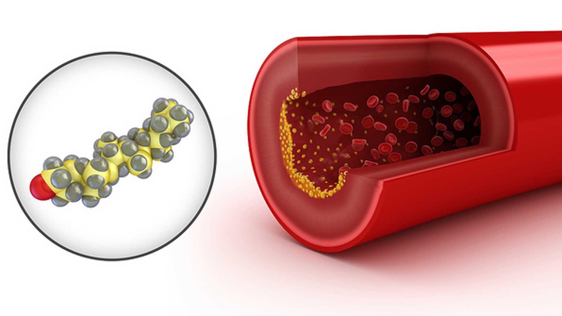 La vacuna contra el colesterol llega para prevenir enfermedades cardiovasculares
