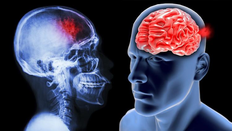 Los pacientes con accidente cerebrovascular experimentan problemas con el sueño