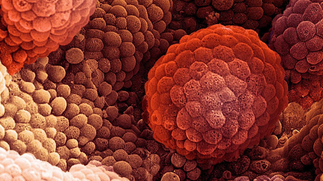 La aparición repentina de diabetes puede ser un síntoma de cáncer de páncreas