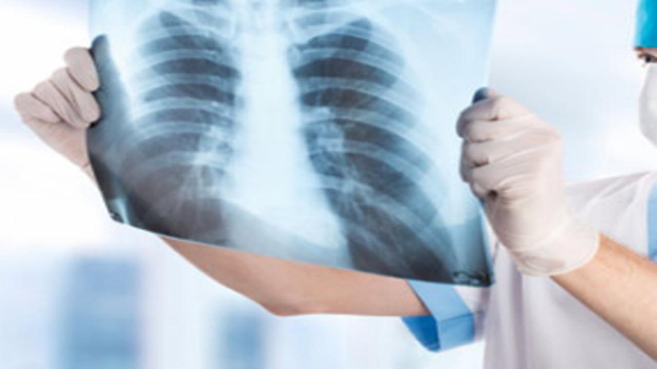 Ben 150 casi di polmonite nel brasciano: aperta un'inchiesta dalla procura