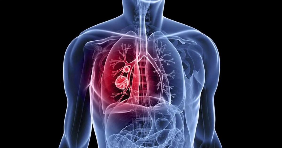 Italia 2018: sono stati diagnosticati mille nuovi casi di cancro al giorno