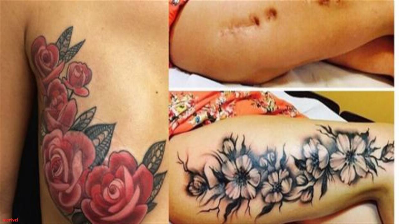 Cicatrizes que ganharam vida nova com tatuagem