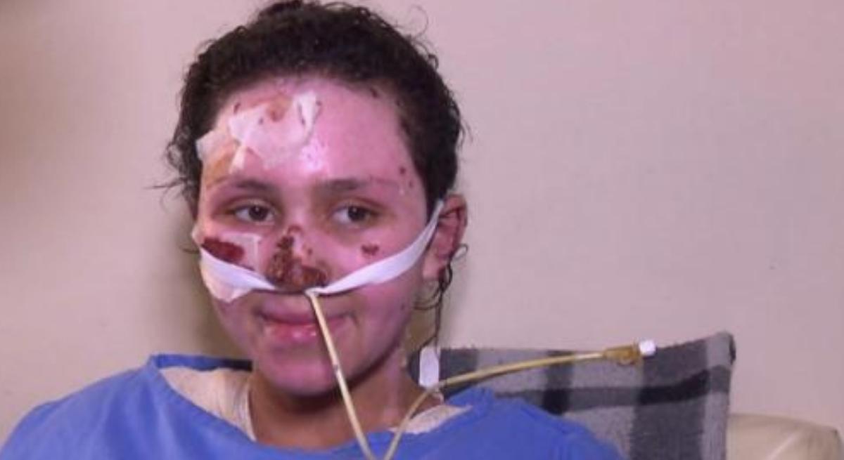 Adolescente que salvou irmão de 4 das chamas morre em Curitiba