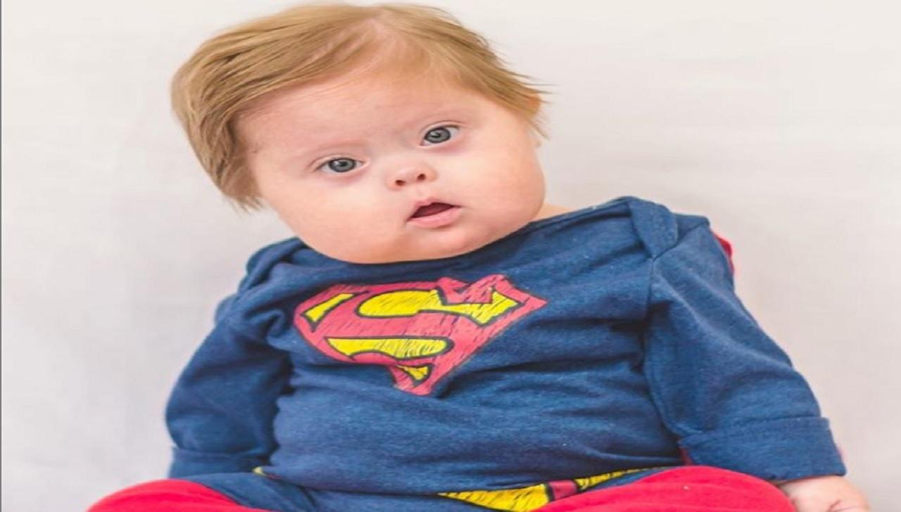 Bebê com síndrome de Dow se veste de super-heróis e viraliza na web