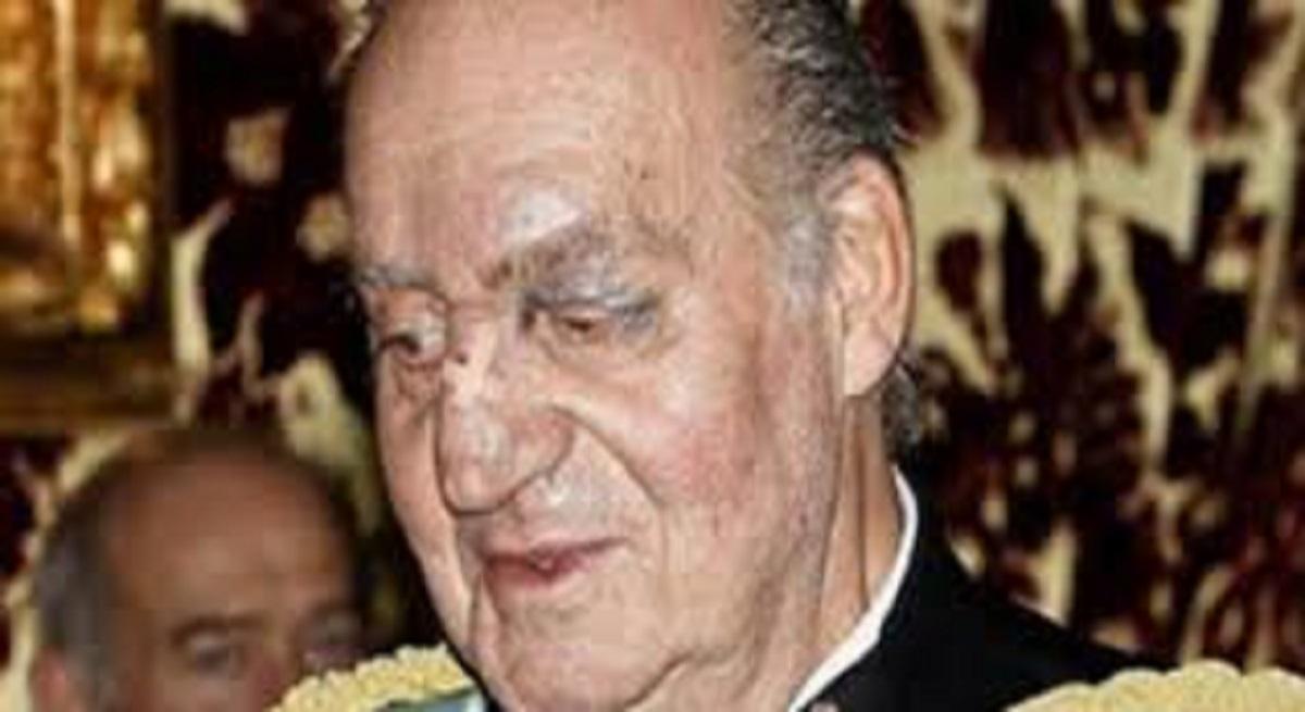La causa del moretón en la cara del Rey Juan Carlos I: una cirugía menor