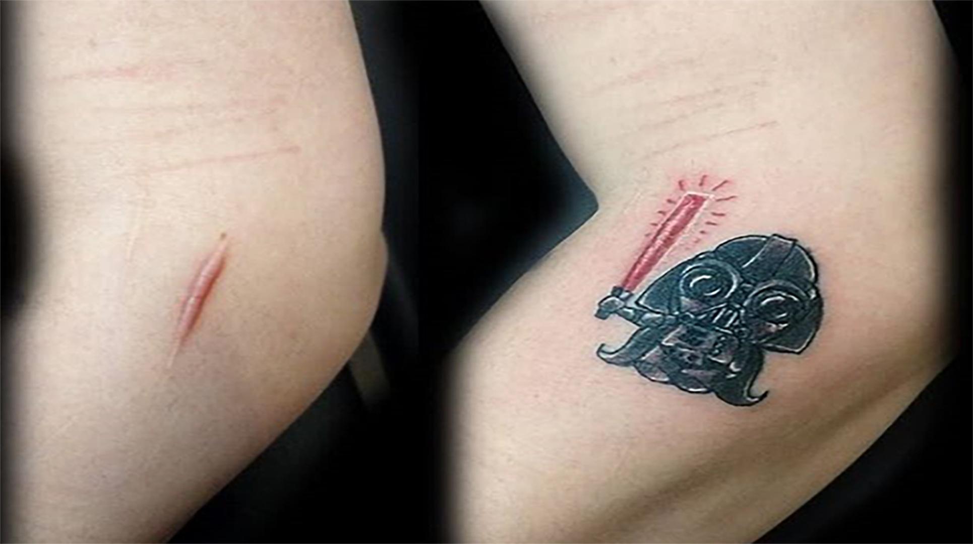 6 tattoos feitas para disfarçar cicatrizes ou manchas na pele
