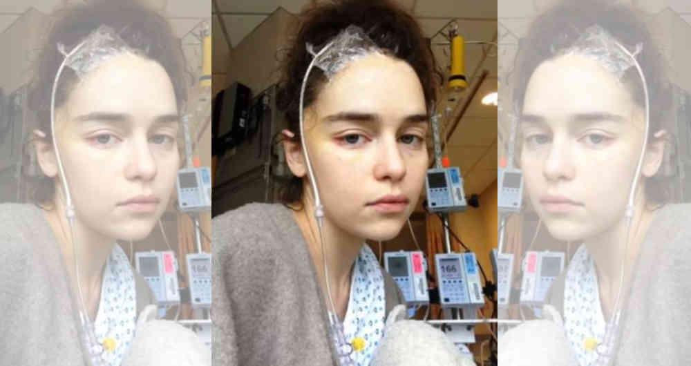 Emilia Clarke muestra fotos de su operación a causa de dos aneurismas