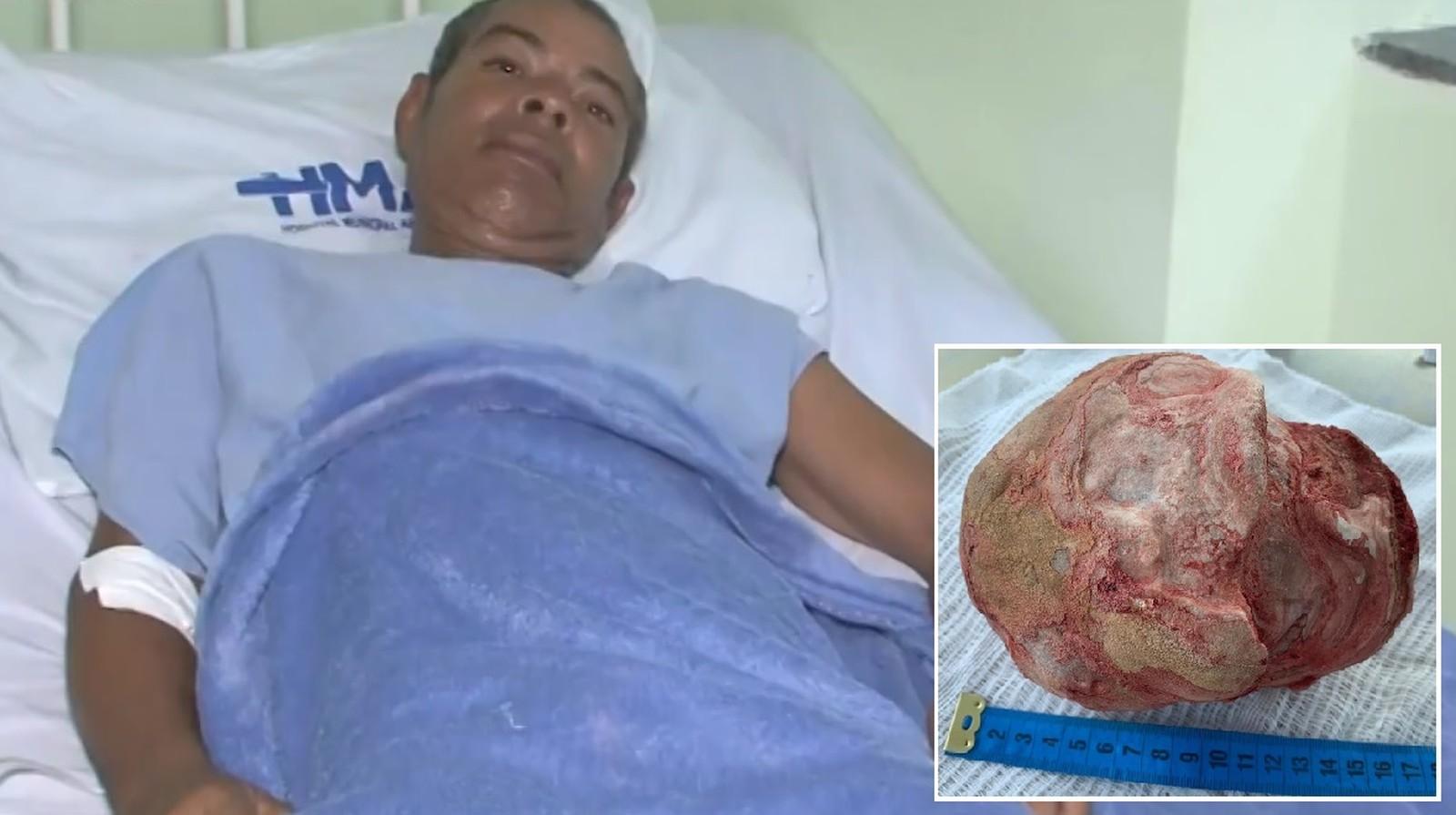 Homem retira pedra nos rins de 1,3 kg na Bahia