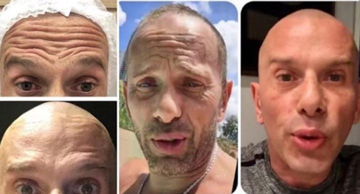 Rafael Ilha exibe antes e depois de procedimento de harmonização facial